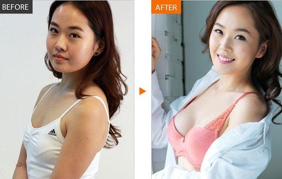 Nâng ngực nội soi có ưu và nhược điểm ở từng kỹ thuật thực hiện