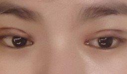 Nguyên nhân cắt mí mắt bị lệch và không đều nhau