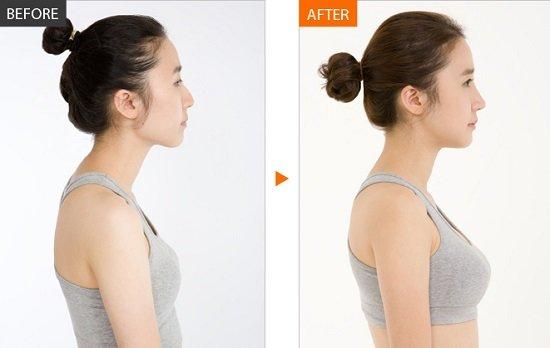 Quá trình trải qua nâng ngực của cô gái sau khi lựa chọn nâng ngực nội soi
