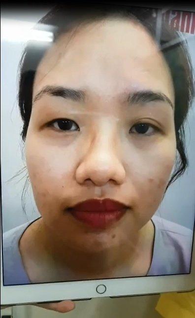 Trước khi cắt mí mắt mini line của Huỳnh Nhi
