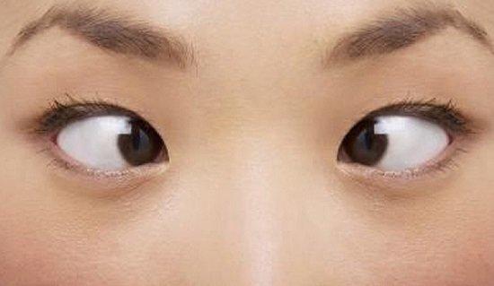 Mắt lé (mắt lác) là gì