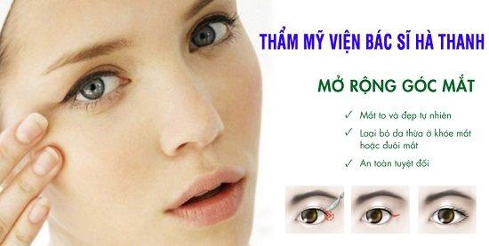 Mở rộng góc mắt là cách khắc phục mắt xếch hiệu quả