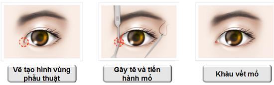 Mở rộng góc mắt giúp khắc phục tình trạng mắt lé