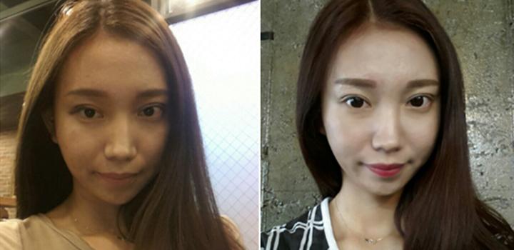 Bảo Ngọc sau khi cắt mí mắt mini line và nâng mũi S line 1 tháng