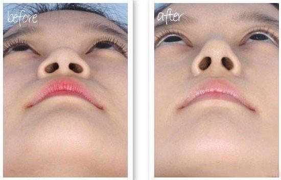 Mức độ an toàn của thu gọn cánh mũi