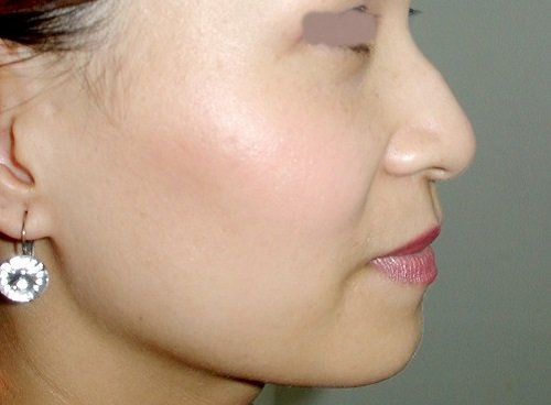 Mũi gồ và cách chỉnh sửa mũi gồ