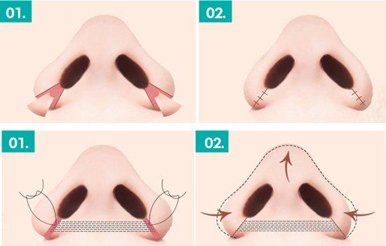 Thu gọn cánh mũi bằng chỉ là gì? Có nên thực hiện không?