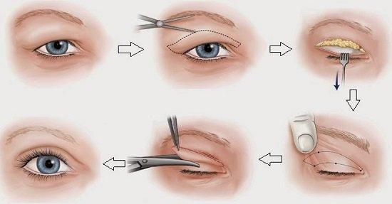 Cách khắc phục sụp mí mắt bằng công nghệ cắt mí