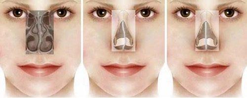 Giải đáp vẹo vách ngăn mũi là gì