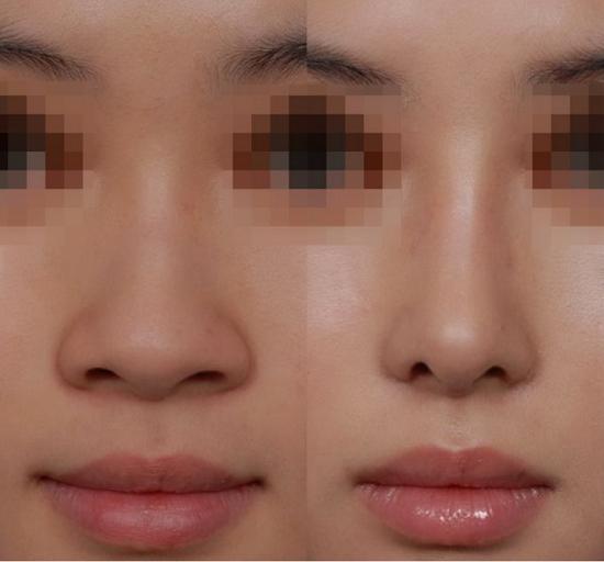 Cuộn cánh mũi là gì