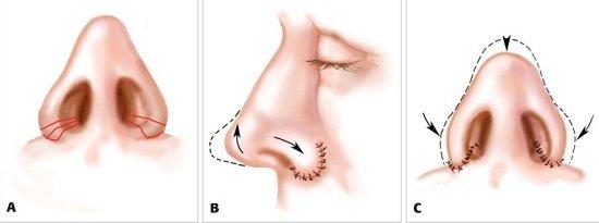 Khác nhau giữa cuộn và cắt cánh mũi