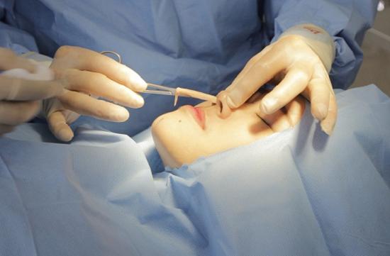 Quy trình tháo sụn nâng mũi sau khi nâng