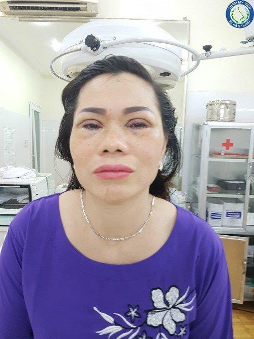 Bác Oanh sau khi phẫu thuật.