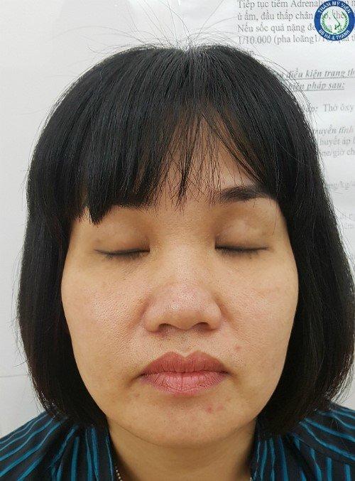 Đôi mắt không hiện mí của chị Tuyết sau khi nhấn mí.