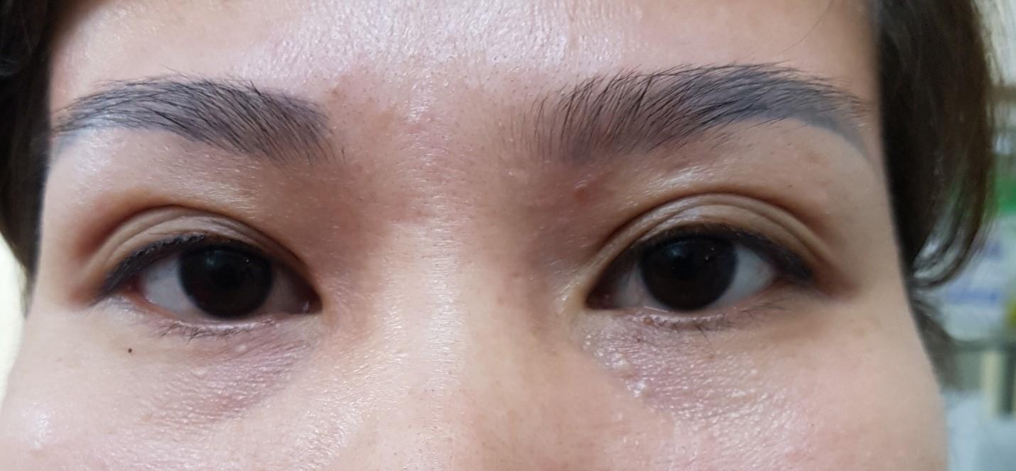Mắt ba mí hai bên không đều nhau mắt phải bị xéo nếp mí