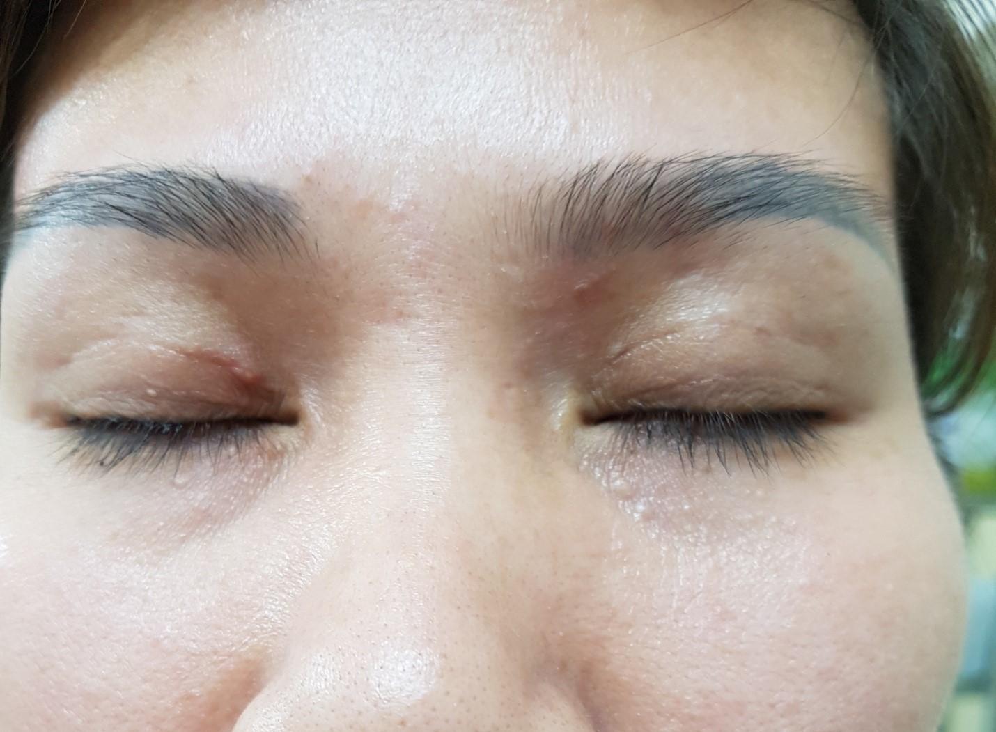 Dọc theo đường mi mắt là những ổ micro apxe nhỏ viêm sưng và mưng mủ do người làm không có kiến thức về vô trùng