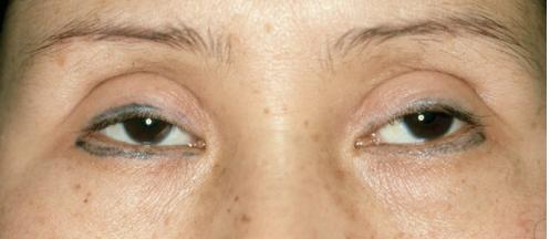 Mí mắt được tạo ra quá cao so với khuân mắt