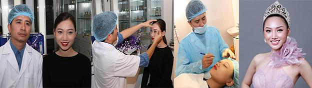 Hoa Hậu Hoàng Thu Thảo thực hiện cắt mí mini line và nâng mũi bằng filler bởi bác sĩ Nguyễn Chí Thanh