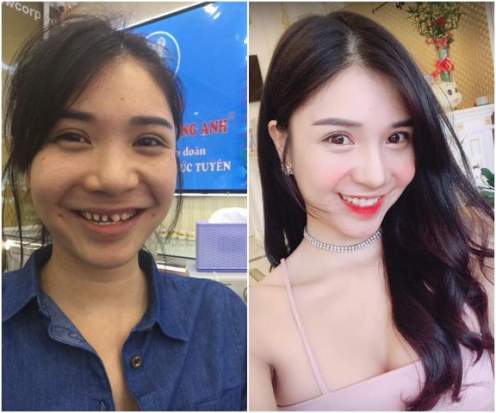 Thanh Bi trước và sau khi thẩm mỹ