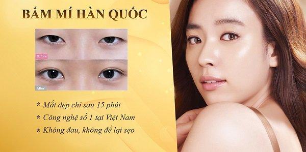 Hà Thanh bấm mí mắt hàn quốc đẹp nhất