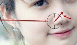 Độ tuổi nên cắt cánh mũi