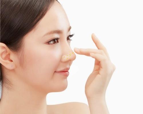 Sau bao lâu có thể sửa lại nâng mũi phẫu thuật bị hỏng?